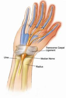 Carpel_tunnel